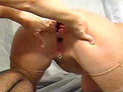 Anal Fisting 1