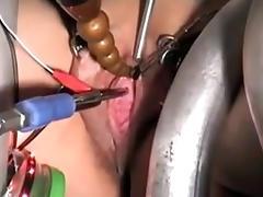 The urethra