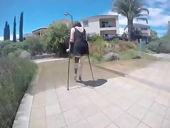 mature wife crutches with leg braces and stilettos.