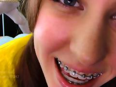 Amateur, Amateur, Compilation, Braces
