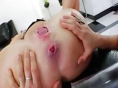 Killer lesbians suck prolapsed asshole tube porn video